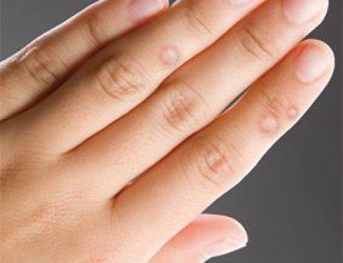 szemölcsök a kezeken a legjobb kezelés csók okozta hpv vírus
