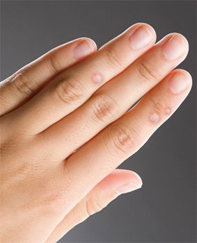 szemölcsök az ujjakon kezelést okoznak