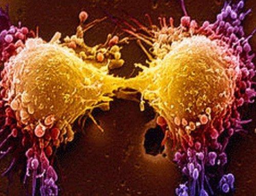 A daganatok első tünetei lehetnek