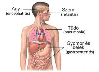 a citomegalovírus fertőzés látásromlásának tünetei)